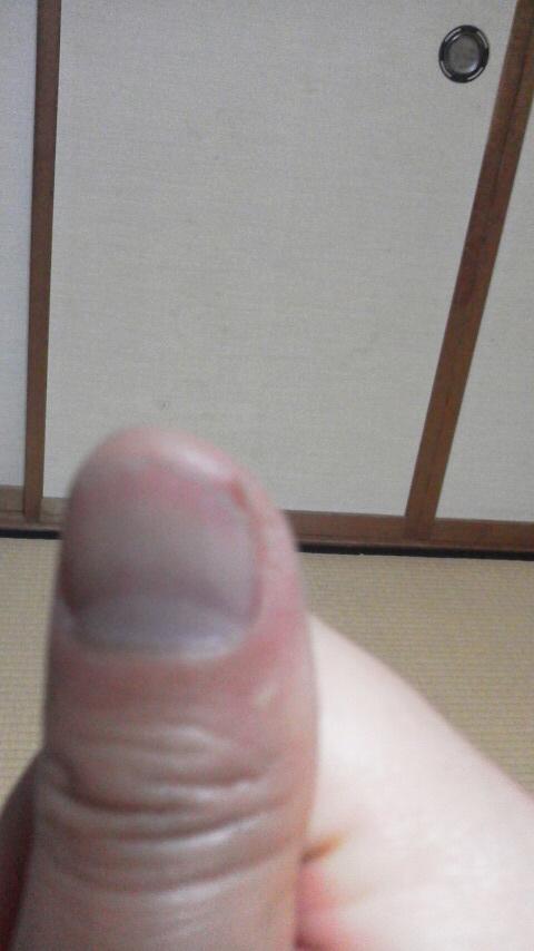 親指いたい。
